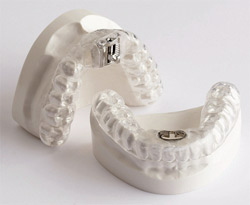 Tap 3 Superior Alternative Sleep Apnea Treatment Great